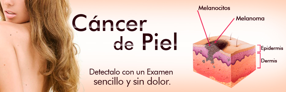 tema-de-salud-cancer-de-piel